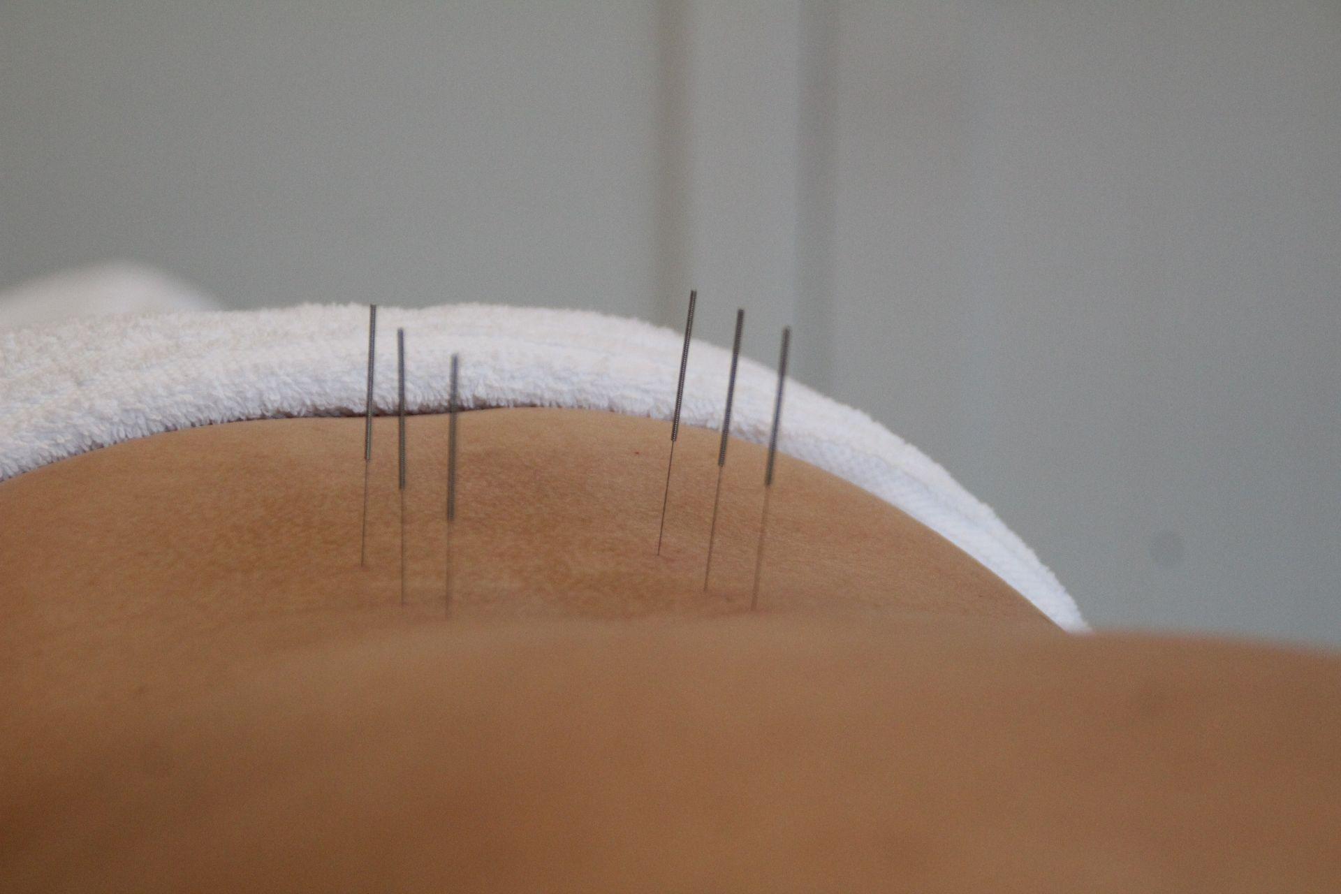 Home pagina Acupunctuur.JPG